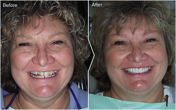 Before and after image of Dr. Eric Duncan's great dental work.