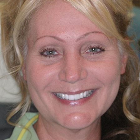 Marietta Dentists Smile Gallery After | Patient = Brenda