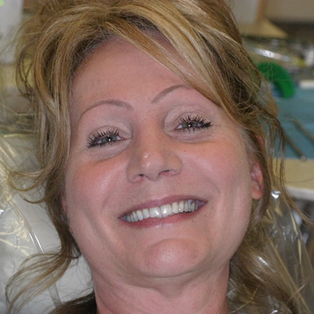 Marietta Dentists Smile Gallery Before | Patient = Brenda
