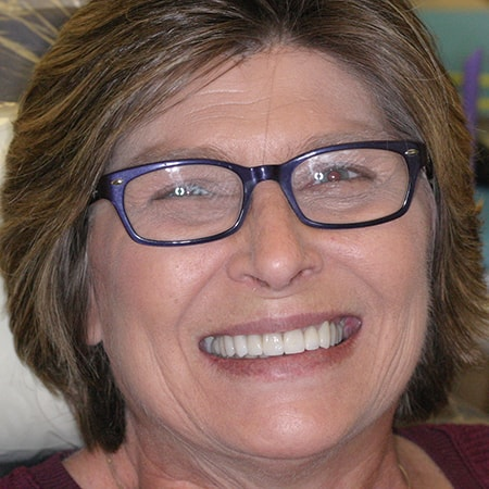 Marietta Dentists Smile Gallery After | Patient = Carol
