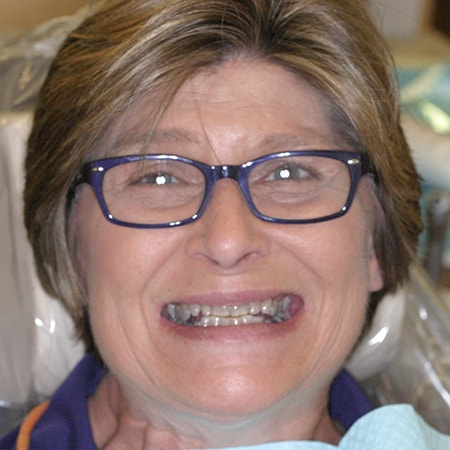 Marietta Dentists Smile Gallery Before | Patient = Carol
