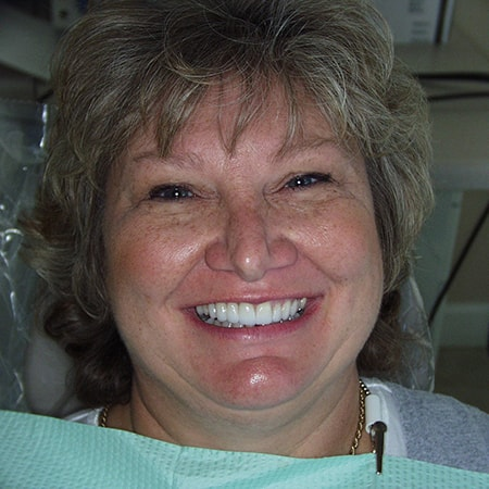 Marietta Dentists Smile Gallery After | Patient = Debbie