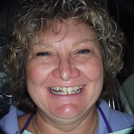 Marietta Dentists Smile Gallery Before | Patient = Debbie