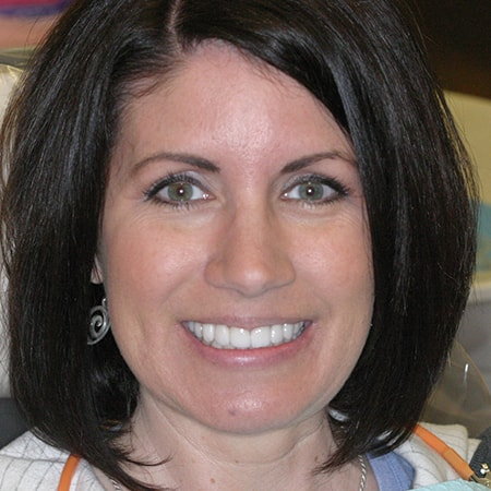 Marietta Dentists Smile Gallery After | Patient = Karen
