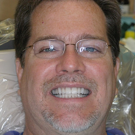Marietta Dentists Smile Gallery After | Patient = Tommy