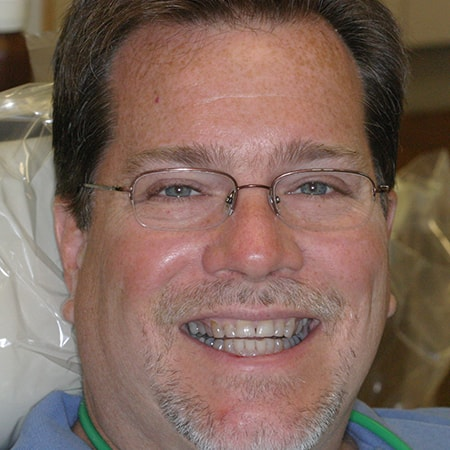 Marietta Dentists Smile Gallery Before | Patient = Tommy
