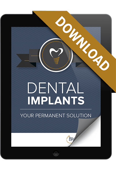 Image of the eBook cover how dental implants work. This preview will take you to the information you need to fill out to get the eBook.