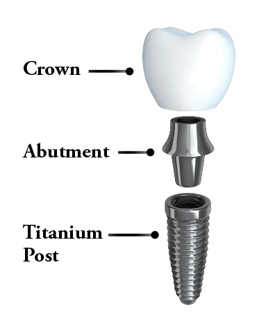 Image of the anatomy of a dental implant