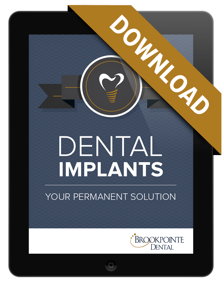 Preview of free eBook about dental implants offered by this dentist in Kennesaw GA