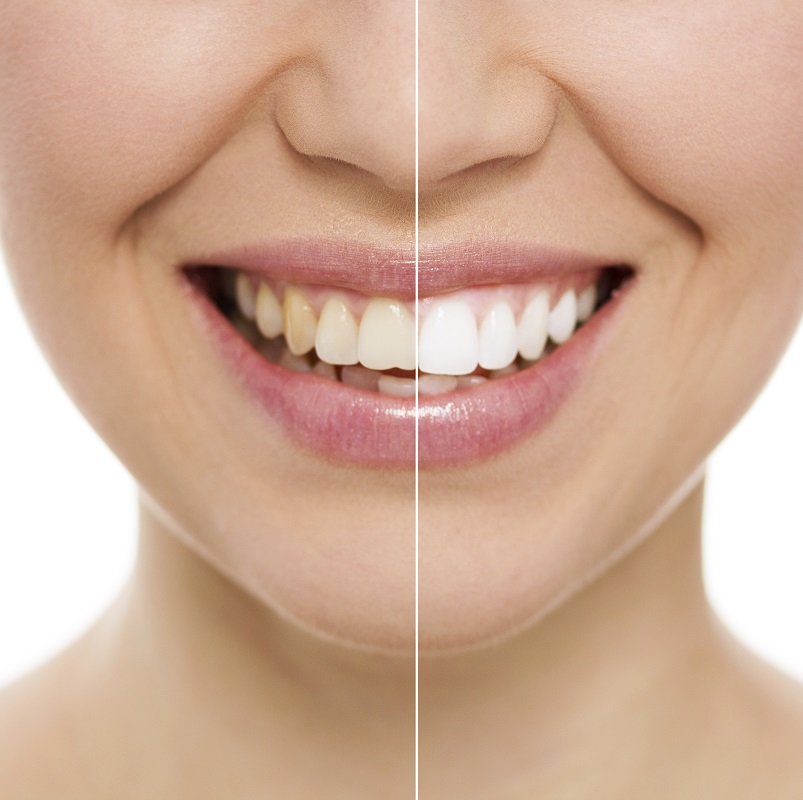 Before and after of woman's smile with teeth whitening by our Kennesaw, GA experts.