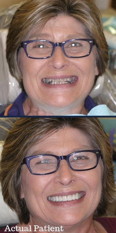 Before and after of woman's smile with smile makeover by our Kennesaw, GA experts.